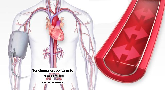 Cum sa-ti scazi tensiunea arteriala in 2 minute fara medicamente