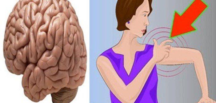Corpul tau iti trimite semnale de avertizare cu o luna inainte de un accident vascular cerebral… Nu le ignora!