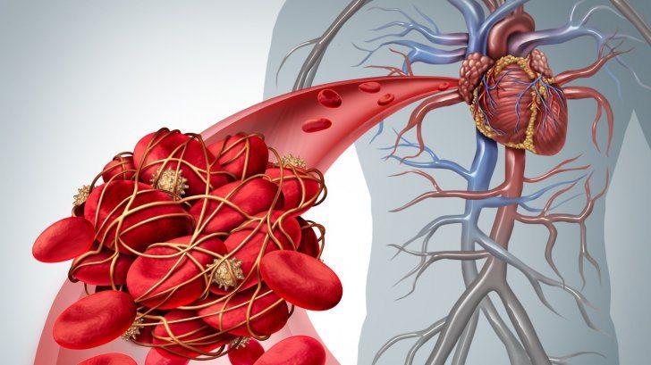 Semne că ai un cheag de sânge care a ajuns la inimă sau la creier
