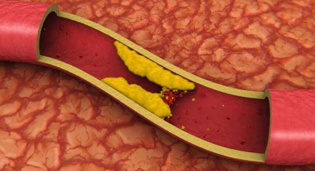 Mitul arterelor colmatate a fost anulat. Ce trebuie sa stim despre bolile coronariene