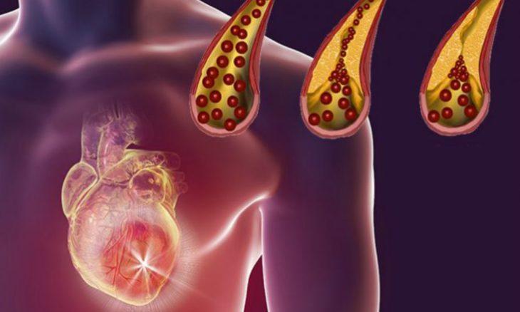 Opt solutii naturale pentru a preveni infundarea arterelor!