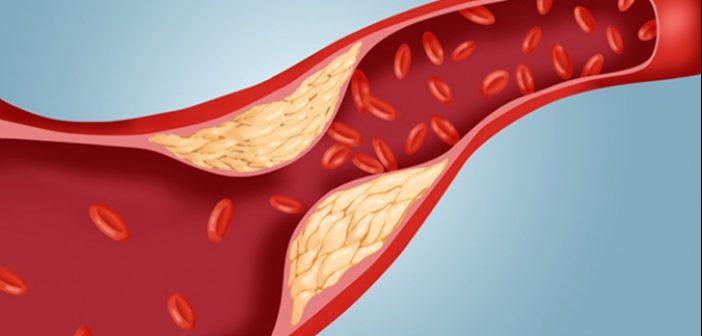 Tu cunosti secretul care te ajuta la reglarea colesterolului? Multa lume nu a auzit de el pana acum