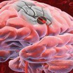 Cât de ușor se poate ajunge la accident vascular chiar de la o simplă ceartă? 10 lucruri care te țin departe de un astfel de accident